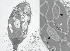 An anaerobic ciliate, Trimyema compressum harbors both archaeal and bacterial symbionts in their cytoplasm.